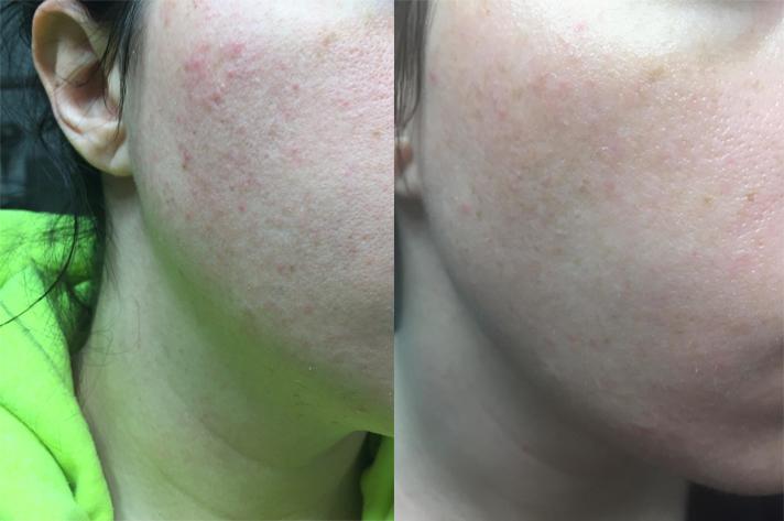 vaseline acne cire